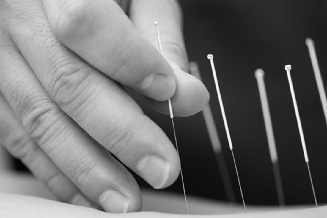 Acupuncture in Medina, TN